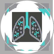 pulmonologiapng